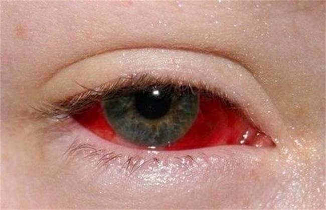 Как сделать белки глаз красные 332