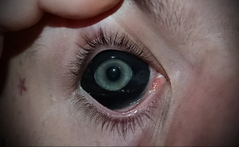 Татуировка на глазном яблоке черной краской